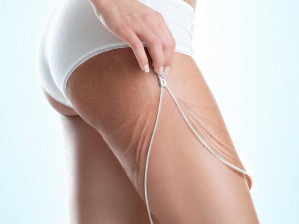 Ученые: Занятия сексом могут привести к резкому развитию целлюлита