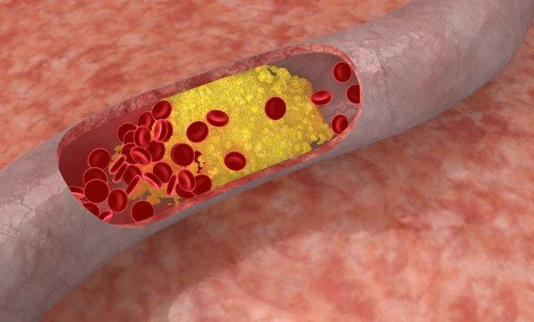 Учёные рассказали о генетической терапии атеросклероза