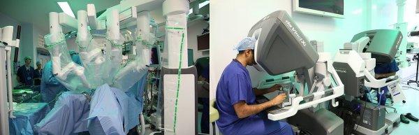 В Британии робот-хирург впервые провел операцию над человеком