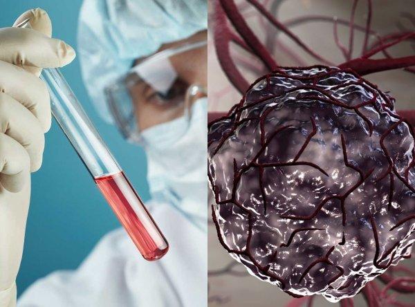 Рассекречен «коктейль», останавливающий раковые клетки
