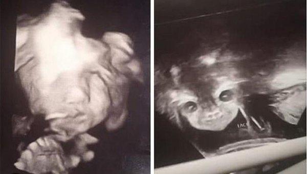 «Это маленький дьявол!»: Лицо младенца на УЗИ повергло в ужас молодую маму