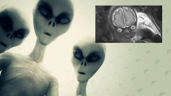 «Отложили» пришельца в россиянку! УЗИ показало жуткое инопланетное существо в чреве жительницы Норильска
