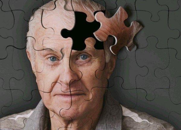 Антитела помогут в диагностике болезни Альцгеймера