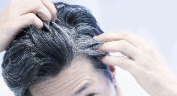 Снижение стресса вернуло седым волосам прежний цвет